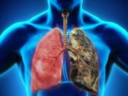 Tin tức sức khỏe - Chuyên gia hé lộ cách khống chế hen suyễn, đờm, ho, khó thở cực hữu hiệu