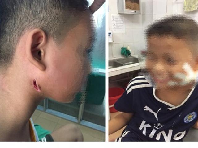 Phát hiện 3 trẻ ở Nghệ An nhiễm vi khuẩn ăn mòn cơ thể Whitmore