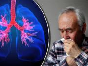Tin tức sức khỏe - Hành trình 40 năm chống trọi với COPD, đờm, ho và cái kết bất ngờ