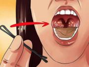 Cách loại bỏ hôi miệng nhanh nhất không phải ai cũng biết. Tìm hiểu ngay!