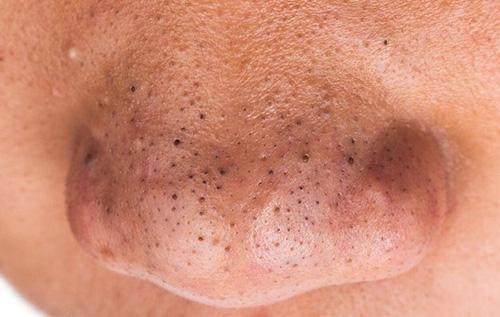 Mụn đầu đen là gì và cách loại bỏ hiệu quả lấy lại làn da sáng mịn - 1