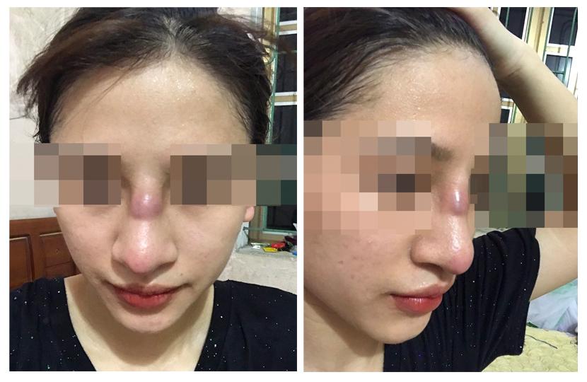 Mũi của cô gái trẻ lồi lõm, nhiễm trùng vì đặt sụn silicon tại spa - 1