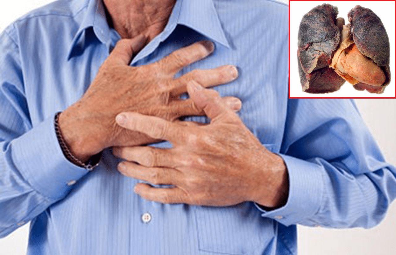 Ho ra máu tươi, cụ ông đi khám phát hiện ung thư phổi giai đoạn cuối - 1