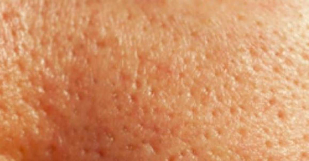 Vì sao lỗ chân lông trên da mặt càng ngày càng to? - 1