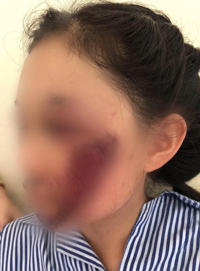 Áo chống nắng cuốn vào bánh xe khiến nữ sinh tổn thương mặt nghiêm trọng - 1