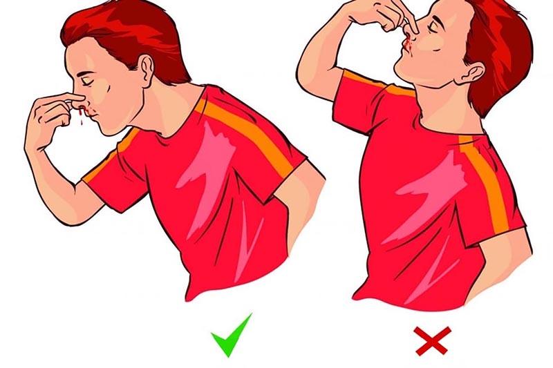 Chảy máu cam mà ngửa đầu ra sẽ viêm phổi? - 1