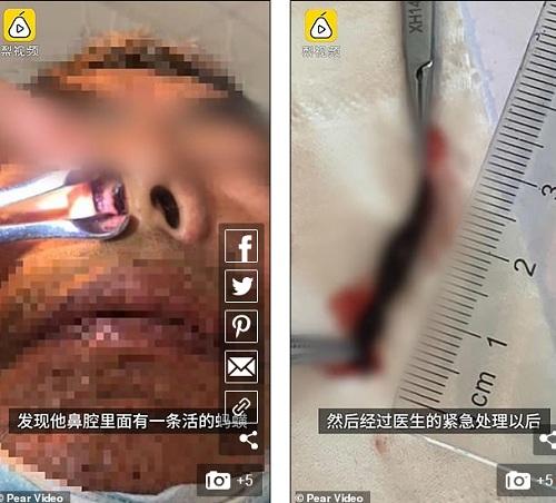 Video: Bị chảy máu mũi không ngừng, đến bệnh viện kiểm tra phát hiện sinh vật hút máu - 1