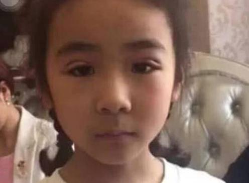 Con 6 tuổi đã cho cắt mí làm đẹp, cảnh báo những cách làm đẹp tai hại thường ngày cha mẹ vẫn làm cho con - 1
