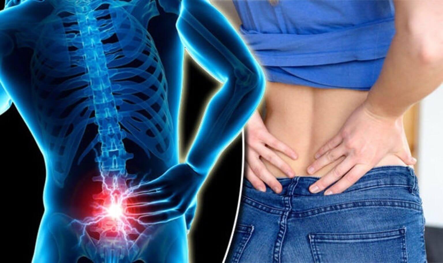 Ghi nhớ ngay 3 bài thuốc giúp giảm đau thắt lưng hiệu quả tại nhà - 1