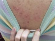 Tin tức sức khỏe - Viêm nang lông, mụn lưng, tay chân chi chít: Đồng loạt hết ngứa, tẹo rụng sạch bay chỉ với 1 bước này!