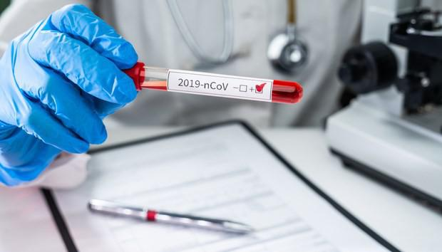 Vì sao phải gộp nhiều mẫu bệnh phẩm thành 'nhóm' để xét nghiệm SARS-CoV-2 - 1