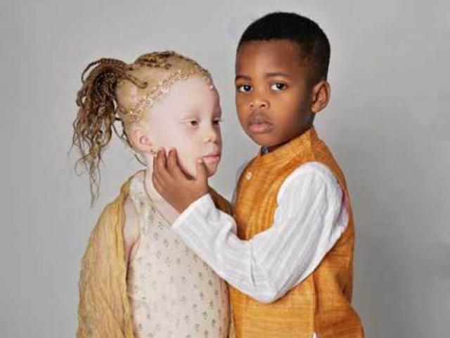 Bạn trẻ - Cuộc sống - Cặp song sinh siêu hiếm, 1 bé bạch tạng, 1 bé da đen
