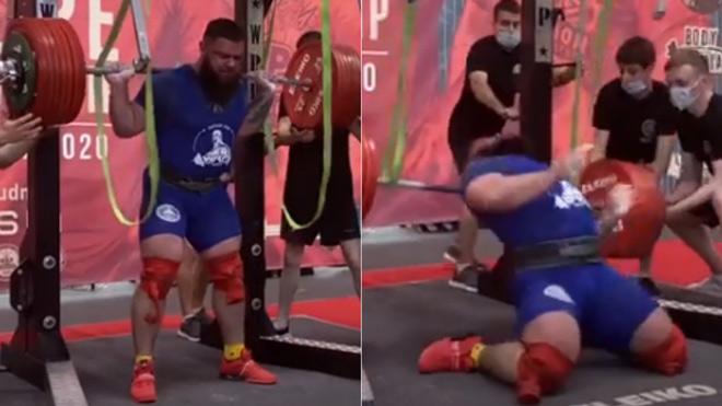Lực sĩ cố nâng tạ 400kg, gặp chấn thương hãi hùng cả hai chân - 1