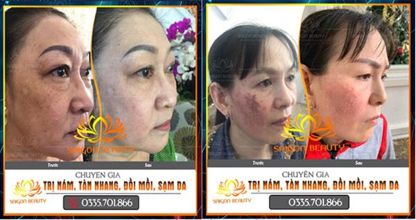 TMV SaiGon Beauty - đơn vị điều trị nám, tàn nhang hiệu quả tại TP.HCM - 1