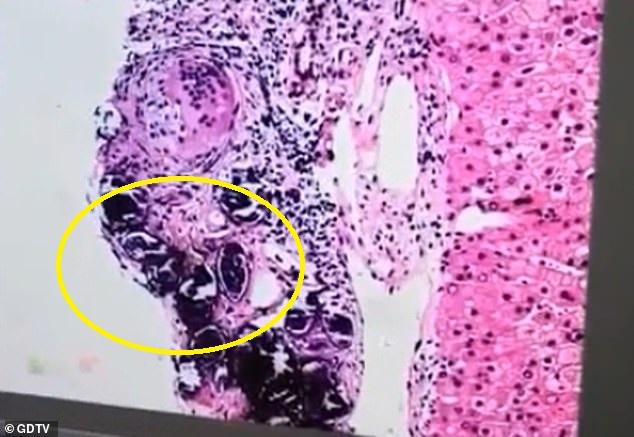 TQ: Sán sống trong cơ thể hơn 10 năm, bệnh nhân sốc khi xem ảnh chụp lá gan - 1