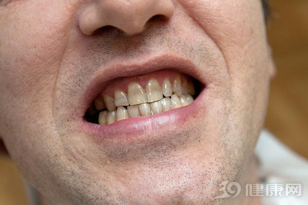 Đại học Harvard công bố kết quả nghiên cứu 20 năm về mối liên hệ giữa răng miệng và ung thư: Người có hàm răng xấu tăng nguy cơ mắc 2 bệnh ung thư - 1