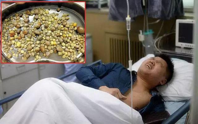 Kinh hãi phát hiện cả 100 viên sỏi nằm đặc kín trọng thận, bác sĩ chỉ rõ nguyên nhân từ thói quen ăn uống - 1