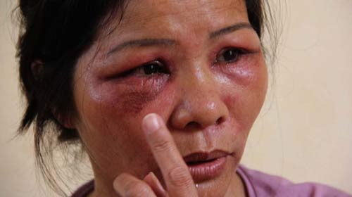 Huế: Kiến ba khoang tấn công dân chung cư - 1