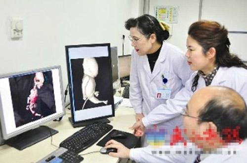 Hình ảnh siêu âm thai nhi nàng tiên cá - 1