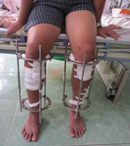 Phẫu thuật kéo dài chân: Không ngắn cũng kéo - 1