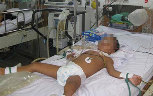 Bé 3 tuổi nguy kịch vì tiêm vắc-xin không đủ liều - 1