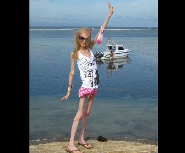 Cô gái cao 1m 58 nhưng chỉ nặng 20 kg, người trông như một xác ve.