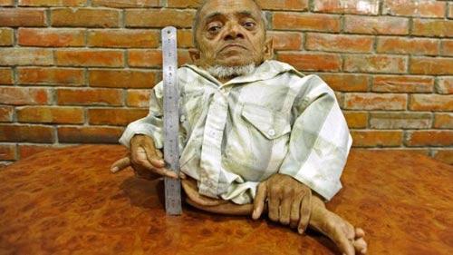Nepal: Ước mơ vươn cao của ông lùn 41 cm - 1