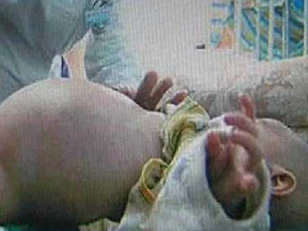 TQ: Kỳ lạ bé trai 2 tuổi mang thai… em ruột - 1