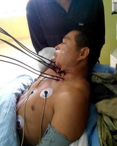 Sống sót sau khi bị 7 thanh sắt xuyên cổ - 1