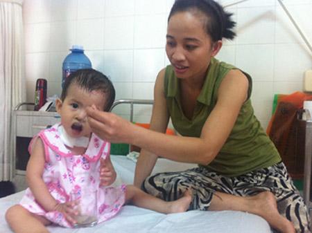 Thay thực quản bằng đại tràng cho bé 19 tháng tuổi - 1