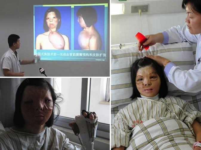 Trung Quốc: Cô gái nuôi khuôn mặt ở trên ngực - 1