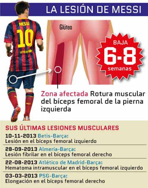 Messi nghỉ 2 tháng: Cú sốc cho tất cả - 1