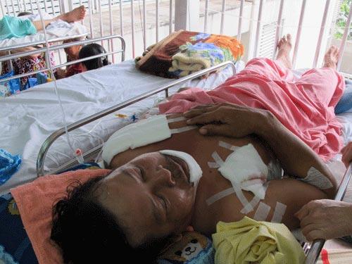Cứu sống bệnh nhân bị đâm 14 nhát - 1