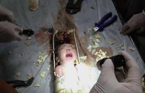 Những bé sơ sinh sống sót kỳ diệu nhất năm - 1