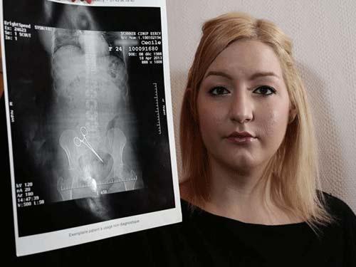 Bác sĩ để quên kẹp 5 tháng trong bụng bệnh nhân - 1