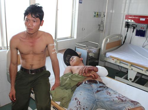 3 nhân viên bảo vệ rừng bị đánh đến nhập viện - 1