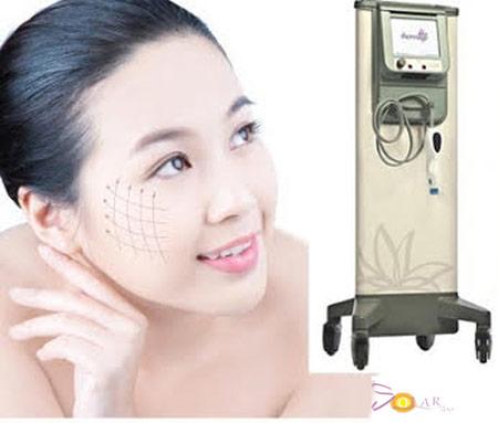 Ưu điểm của công nghệ căng da mặt không phẫu thuật - 1