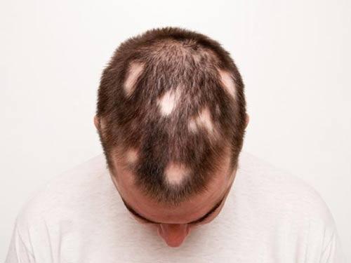 Phát hiện cơ chế chữa rụng tóc mới - 1