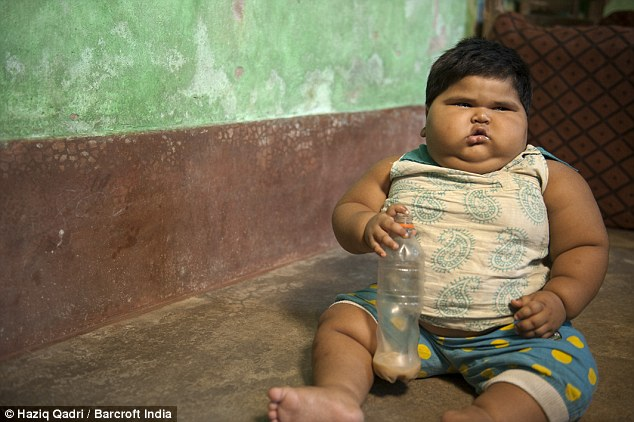 Bé gái 18 tháng tuổi nặng bằng đứa trẻ 8 tuổi - 1