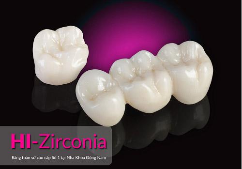 Nha Khoa Đông Nam ra mắt răng sứ cao cấp HI–Zirconia - 1