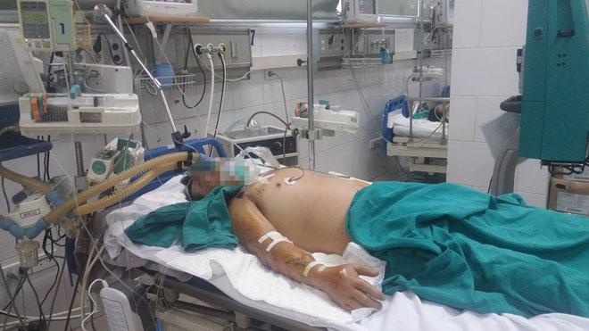 Người đàn ông suy đa tạng, nguy kịch do ăn tiết canh lợn - 1