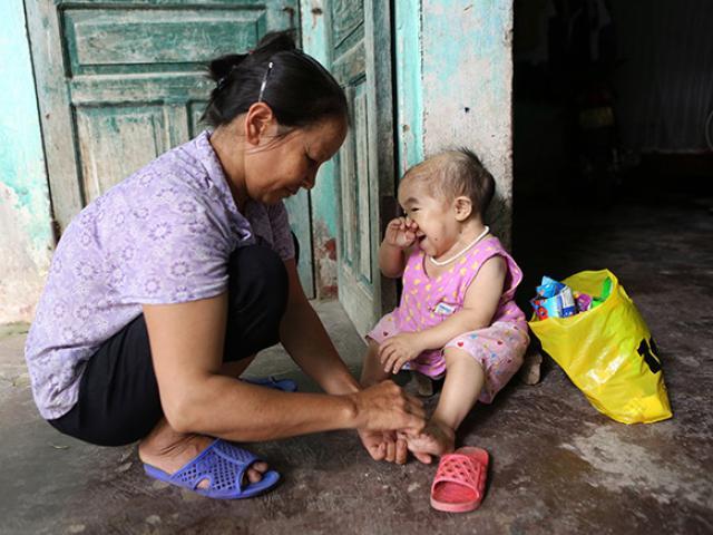 Xót xa người mẹ già gần 3 thập kỷ chăm sóc đứa con không bao giờ lớn