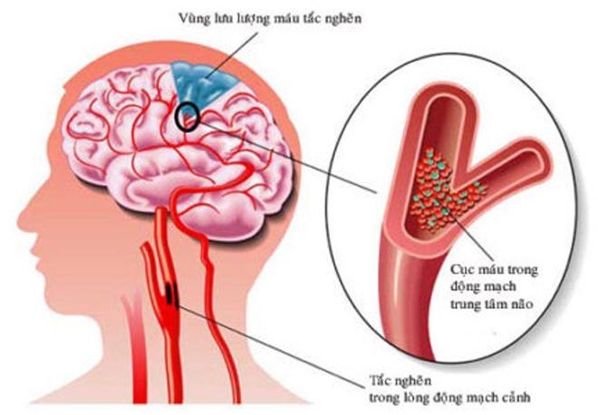 Tai biến mạch máu não: Hàng ngàn bệnh nhân bất ngờ hồi phục nhờ mẹo nhỏ! - 1