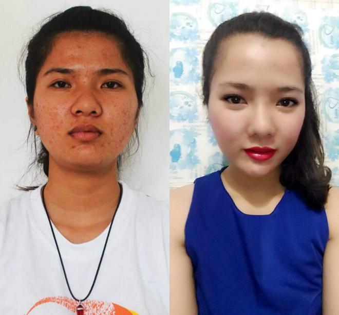 """Cô gái Quảng Trị sốc vì khuôn mặt """"xinh như hoa"""" của chính mình sau thẩm mỹ - 1"""