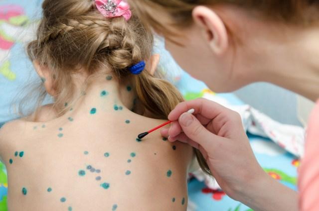 4 điều phụ huynh cần lưu ý để bảo vệ trẻ trước mùa cao điểm bệnh thủy đậu - 1