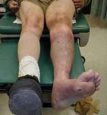"""Suýt mất chân vì """"bài chữa lạ"""" của lang vườn - 1"""