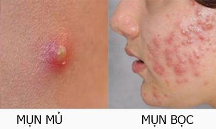 Phép màu cho người bị mụn viêm kín mặt không cần bôi nghệ hay đi spa - 1