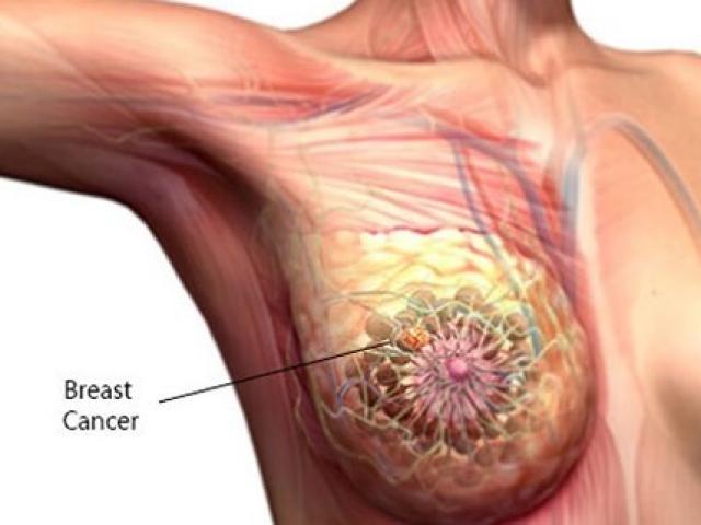 Đã là phụ nữ, bạn đừng quên 7 dấu hiệu ung thư vú