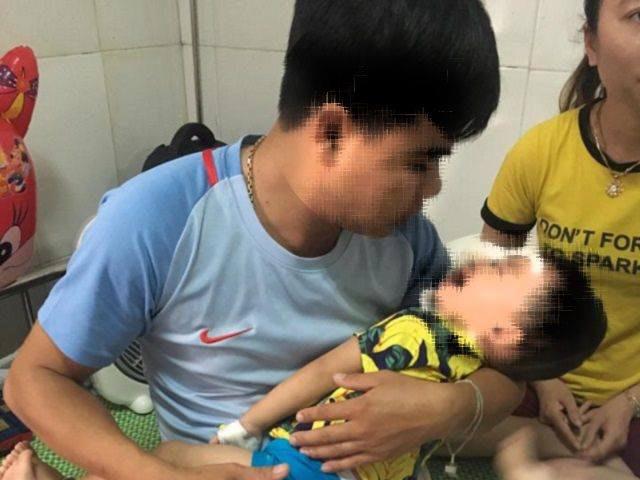 Bé trai 2 tuổi bị chó Béc-giê nhà nuôi cắn đa chấn thương ở mặt - 1