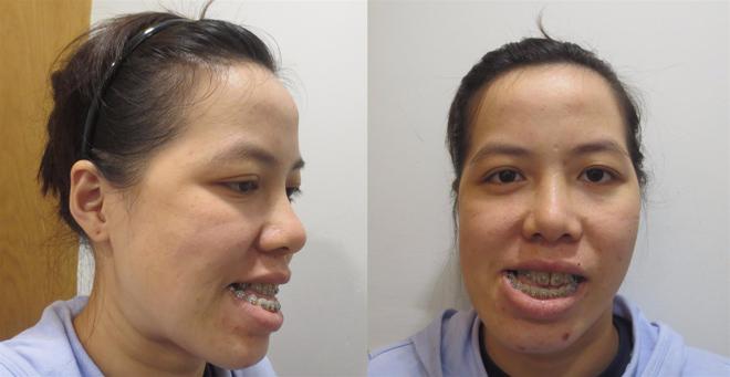 Cô giáo Bình Định có gương mặt méo lột xác ngoạn mục sau phẫu thuật - 1